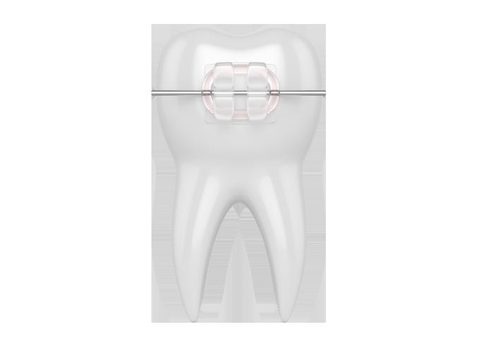 ceramic-braces03.png