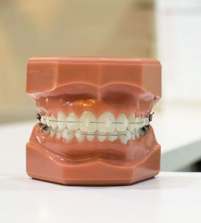 ceramic-braces02.jpg