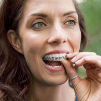How do braces work?